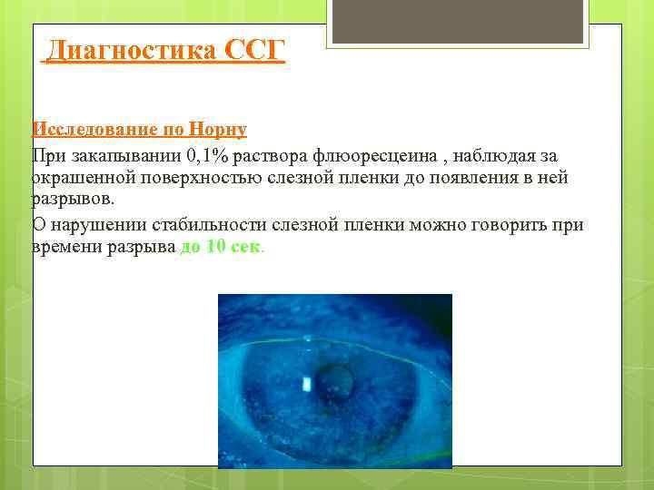 Диагностика ССГ Исследование по Норну При закапывании 0, 1% раствора флюоресцеина , наблюдая