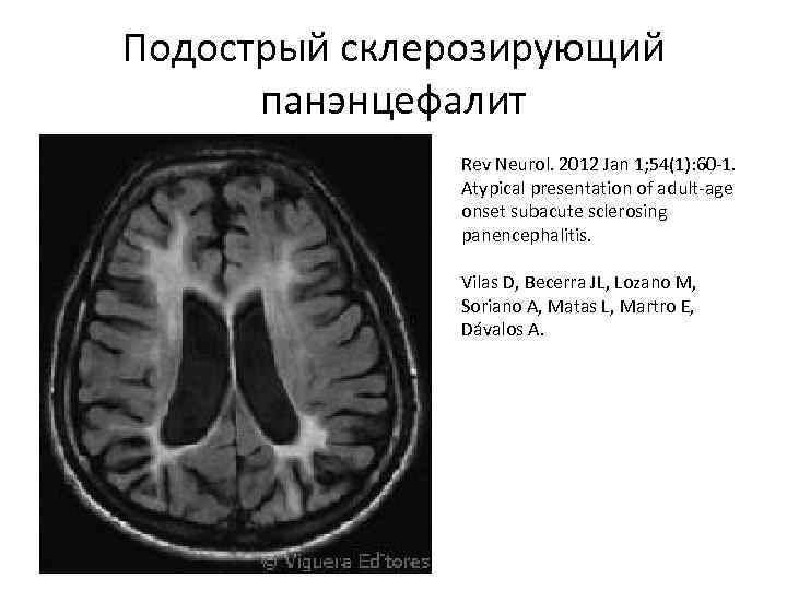 Подострый склерозирующий панэнцефалит Rev Neurol. 2012 Jan 1; 54(1): 60 -1. Atypical presentation of