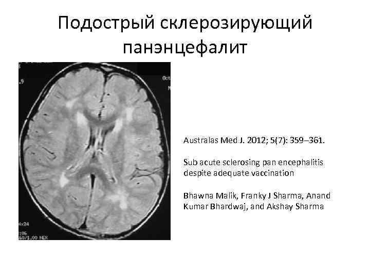 Подострый склерозирующий панэнцефалит Australas Med J. 2012; 5(7): 359– 361. Sub acute sclerosing pan