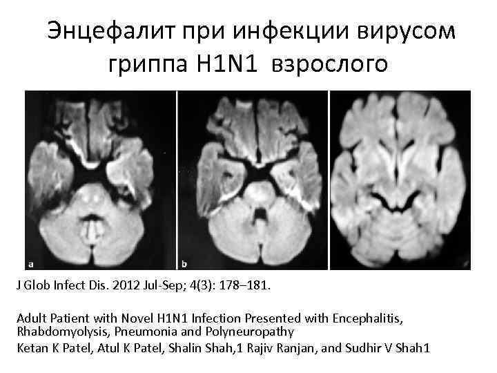 Potential risk factors associated with human encephalitis