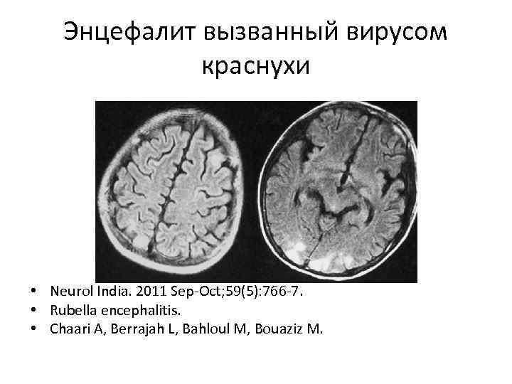 Энцефалит вызванный вирусом краснухи • Neurol India. 2011 Sep-Oct; 59(5): 766 -7. • Rubella
