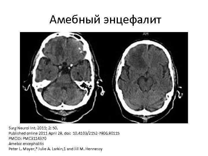 Амебный энцефалит Surg Neurol Int. 2011; 2: 50. Published online 2011 April 28. doi: