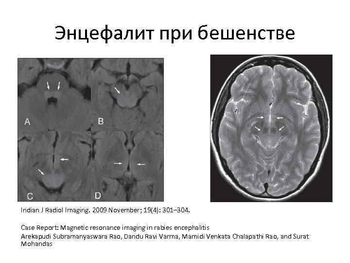 Энцефалит при бешенстве Indian J Radiol Imaging. 2009 November; 19(4): 301– 304. Case Report: