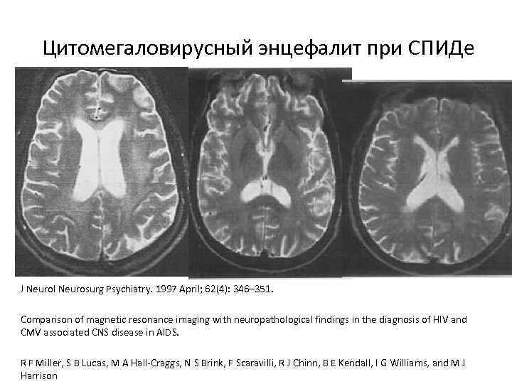 Цитомегаловирусный энцефалит при СПИДе J Neurol Neurosurg Psychiatry. 1997 April; 62(4): 346– 351. Comparison
