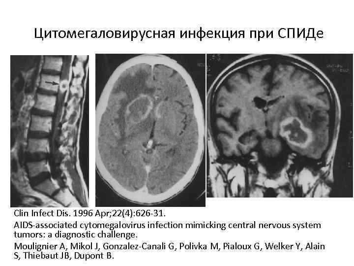 Цитомегаловирусная инфекция при СПИДе Clin Infect Dis. 1996 Apr; 22(4): 626 -31. AIDS-associated cytomegalovirus