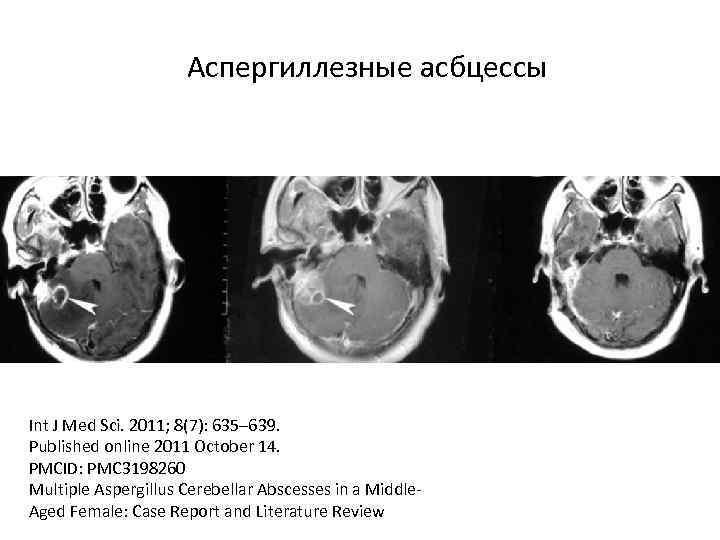 Аспергиллезные асбцессы Int J Med Sci. 2011; 8(7): 635– 639. Published online 2011 October