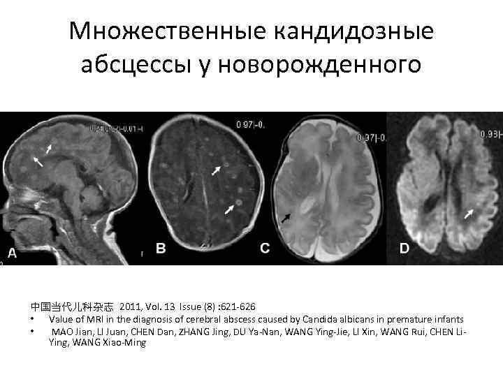 Множественные кандидозные абсцессы у новорожденного 中国当代儿科杂志 2011, Vol. 13 Issue (8) : 621 -626