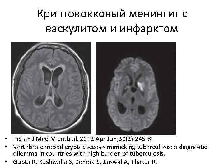 Криптококковый менингит с васкулитом и инфарктом • Indian J Med Microbiol. 2012 Apr-Jun; 30(2):