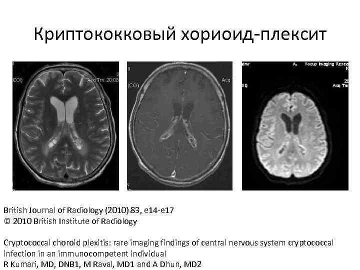 Криптококковый хориоид-плексит British Journal of Radiology (2010) 83, e 14 -e 17 © 2010