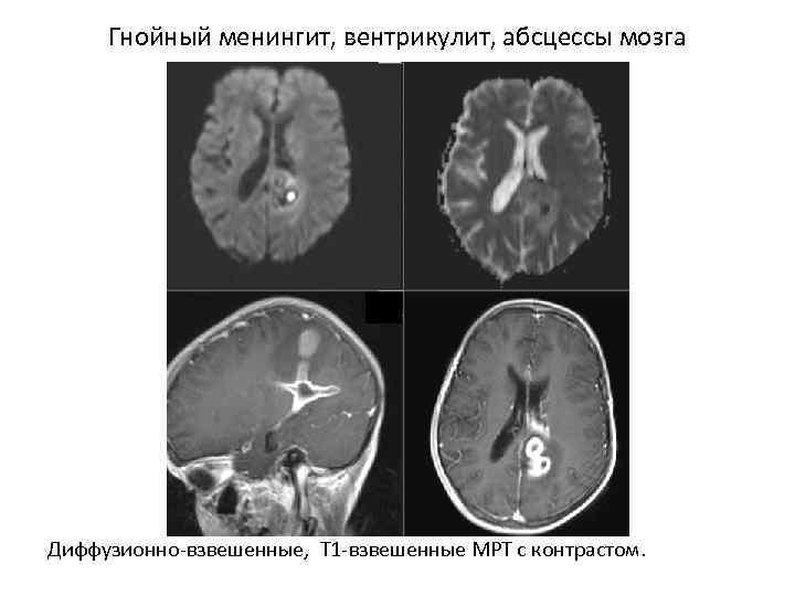 Гнойный менингит, вентрикулит, абсцессы мозга Диффузионно-взвешенные, T 1 -взвешенные МРТ с контрастом.
