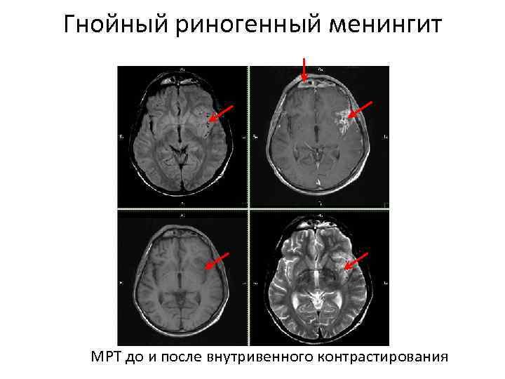 Гнойный риногенный менингит МРТ до и после внутривенного контрастирования