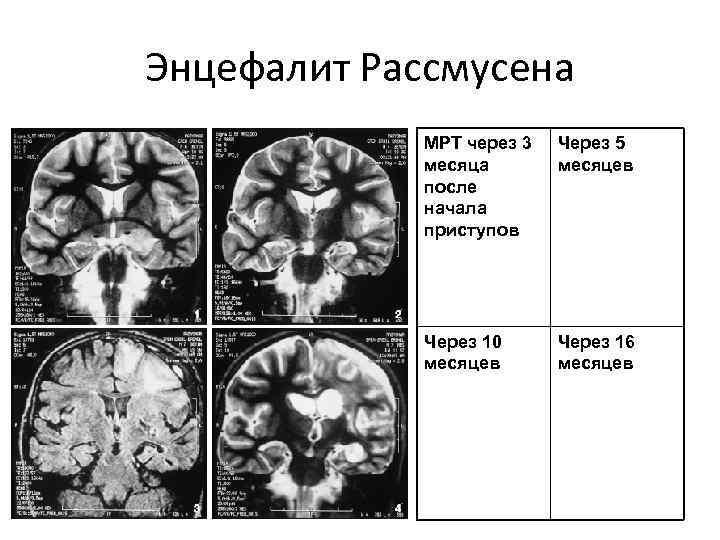 Энцефалит Рассмусена МРТ через 3 месяца после начала приступов Через 5 месяцев Через 10