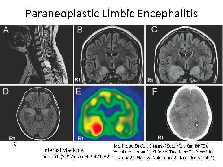 Paraneoplastic Limbic Encephalitis с Morinobu Seki 1), Shigeaki Suzuki 1), Ken Ishii 2), Internal