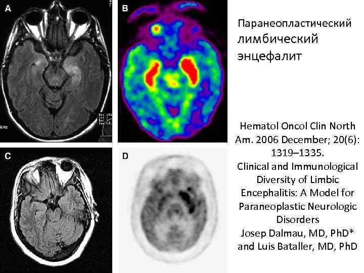 Паранеопластический лимбический энцефалит Hematol Oncol Clin North Am. 2006 December; 20(6): 1319– 1335. Clinical