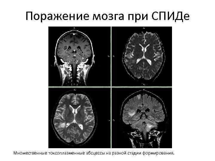 Поражение мозга при СПИДе Множественные токсоплазменные абсцессы на разной стадии формирования.