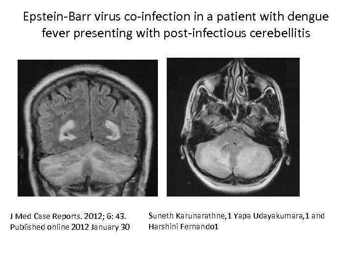 Epstein-Barr virus co-infection in a patient with dengue fever presenting with post-infectious cerebellitis J