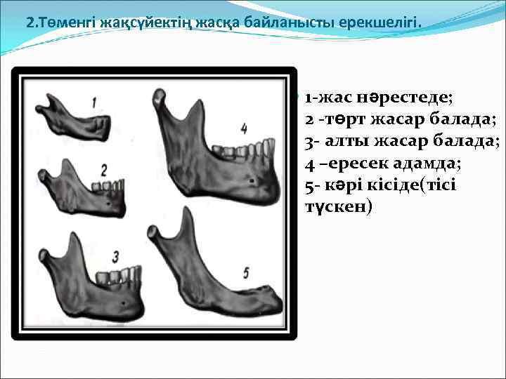 2. Төменгі жақсүйектің жасқа байланысты ерекшелігі. 1 -жас нәрестеде; 2 -төрт жасар балада; 3