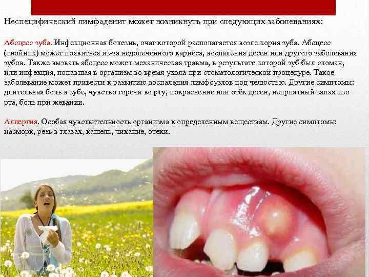 Неспецифический лимфаденит может возникнуть при следующих заболеваниях: Абсцесс зуба. Инфекционная болезнь, очаг которой располагается