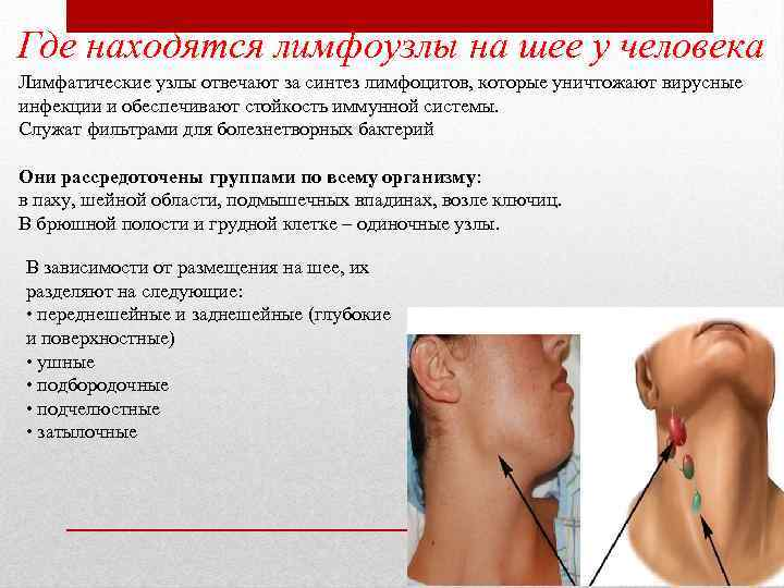 Где находятся лимфоузлы на шее у человека Лимфатические узлы отвечают за синтез лимфоцитов, которые