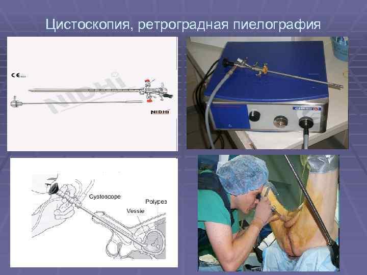 Цистоскопия, ретроградная пиелография