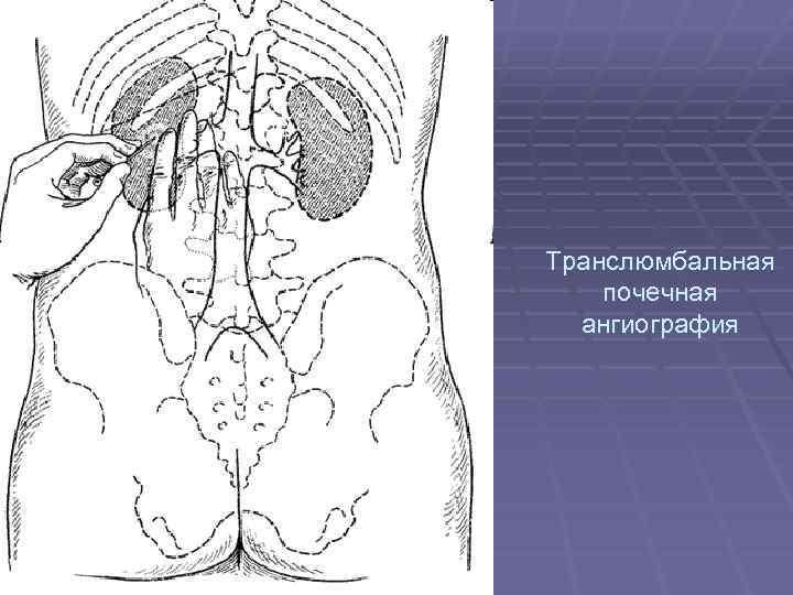 Транслюмбальная почечная ангиография