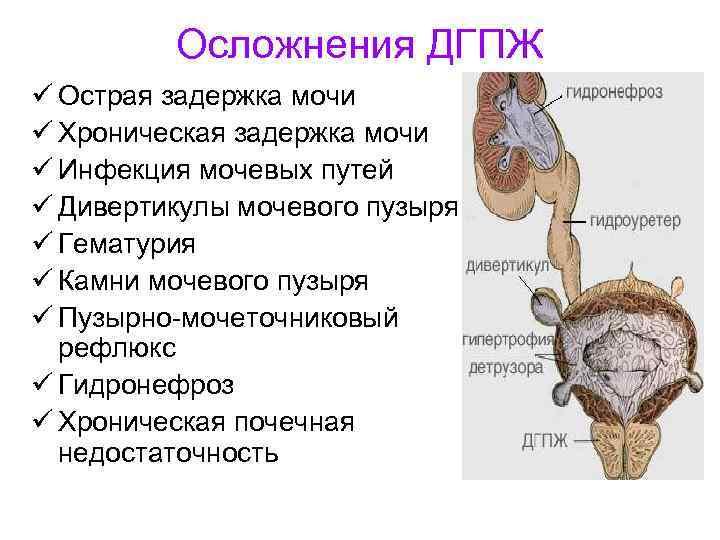 Дгпж 2 стадии хронического простатита