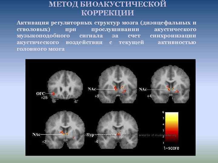МЕТОД БИОАКУСТИЧЕСКОЙ КОРРЕКЦИИ Активация регуляторных структур мозга (диэнцефальных и стволовых) при прослушивании акустического музыкоподобного