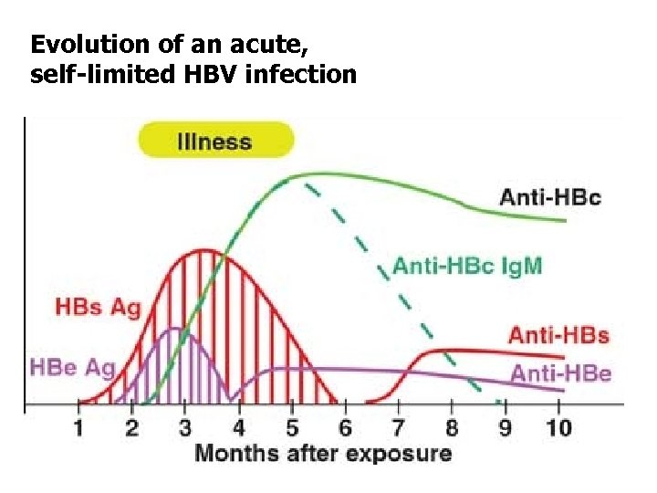 Evolution of an acute, self-limited HBV infection