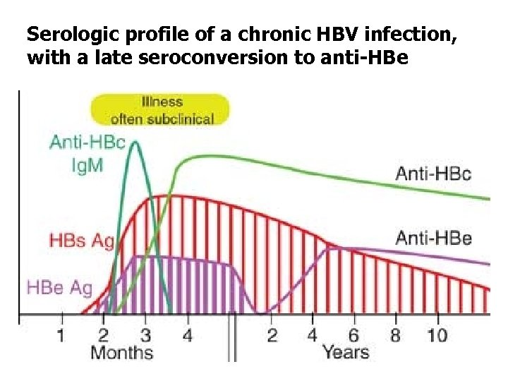 Serologic profile of a chronic HBV infection, with a late seroconversion to anti-HBe