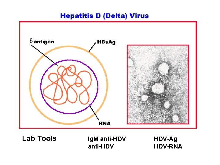 Lab Tools Ig. M anti-HDV HDV-Ag HDV-RNA