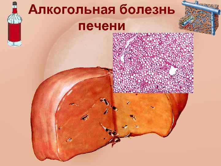 Лекарственный гепатит печени диета