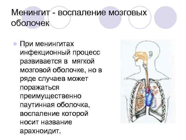 Менингит - воспаление мозговых оболочек l При менингитах инфекционный процесс развивается в мягкой мозговой