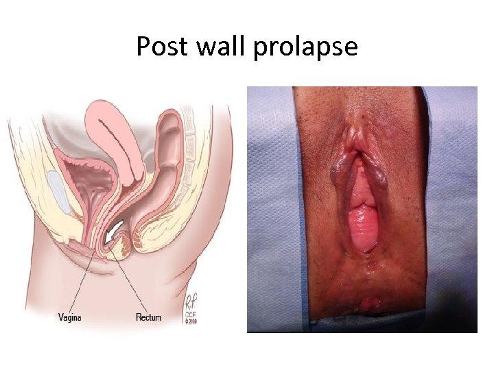 Post wall prolapse