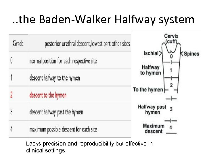 . . the Baden-Walker Halfway system Lacks precision and reproducibility but effective in clinical