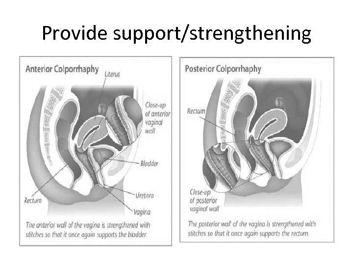 Provide support/strengthening