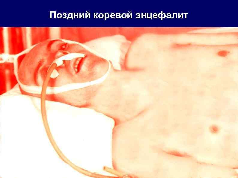 Поздний коревой энцефалит