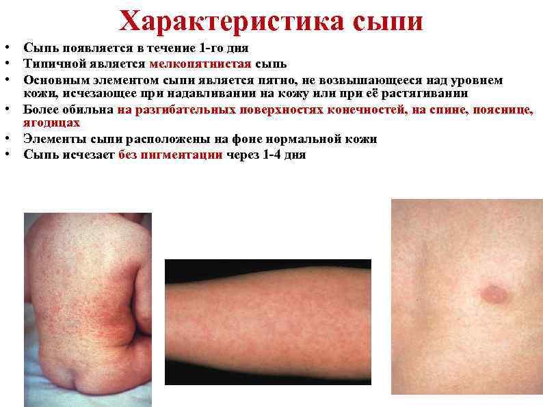 Характеристика сыпи • Сыпь появляется в течение 1 -го дня • Типичной является мелкопятнистая