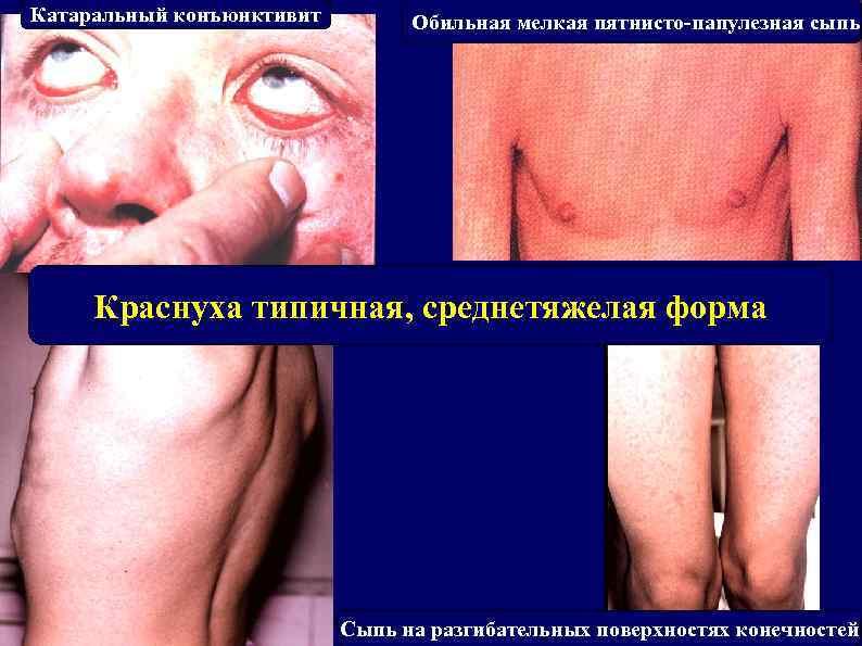 Катаральный конъюнктивит Обильная мелкая пятнисто-папулезная сыпь Краснуха типичная, среднетяжелая форма Сыпь на разгибательных поверхностях