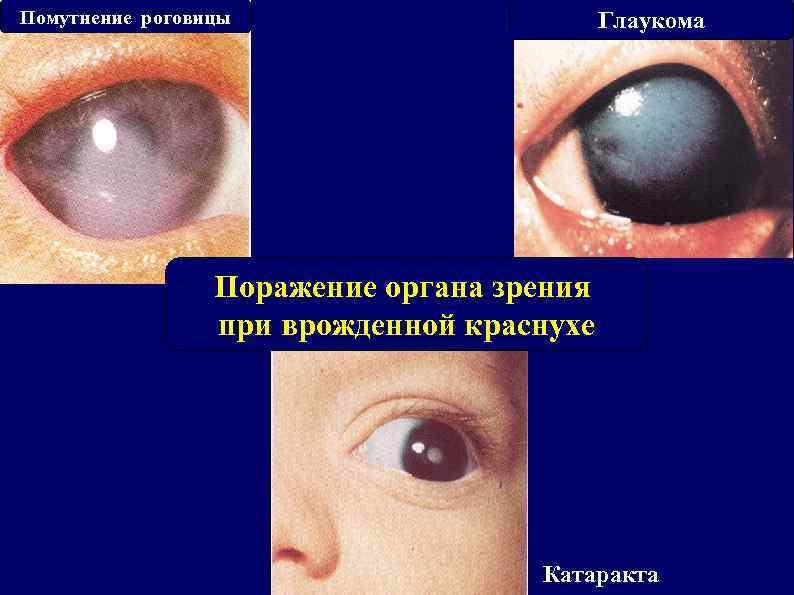 Помутнение роговицы Глаукома Поражение органа зрения при врожденной краснухе Катаракта