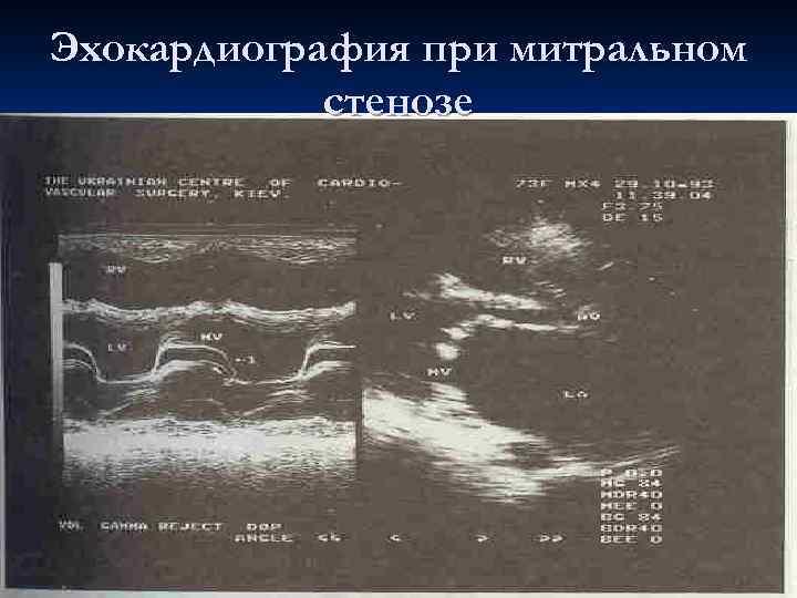 Эхокардиография при митральном стенозе