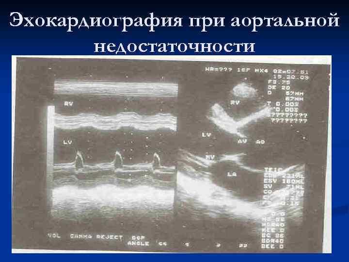 Эхокардиография при аортальной недостаточности