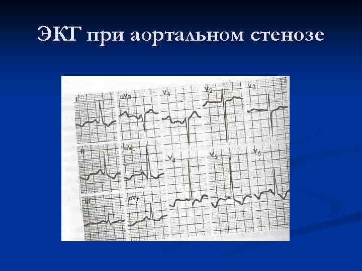 ЭКГ при аортальном стенозе