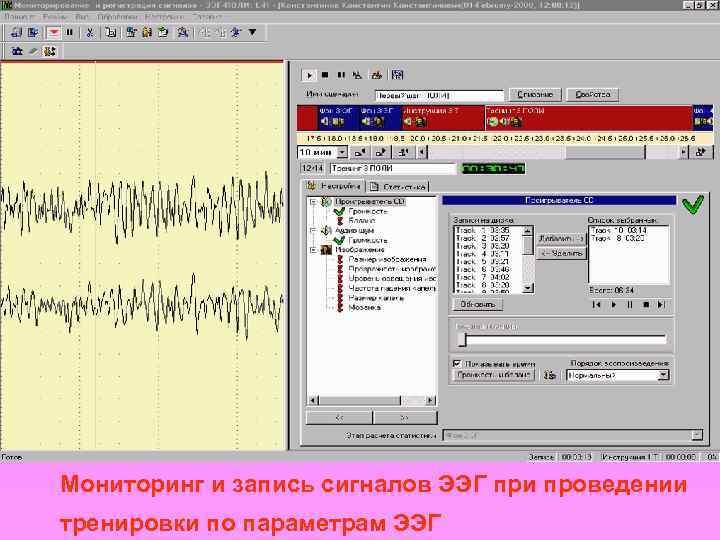Мониторинг и запись сигналов ЭЭГ при проведении тренировки по параметрам ЭЭГ