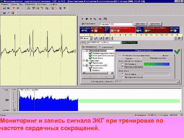 Мониторинг и запись сигнала ЭКГ при тренировке по частоте сердечных сокращений.
