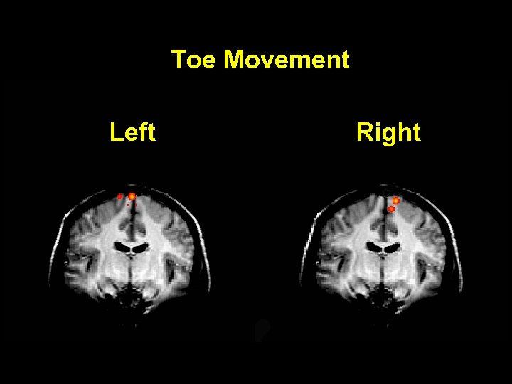 Toe Movement Left Right