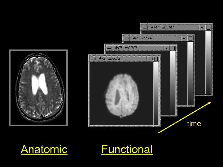 time Anatomic Functional