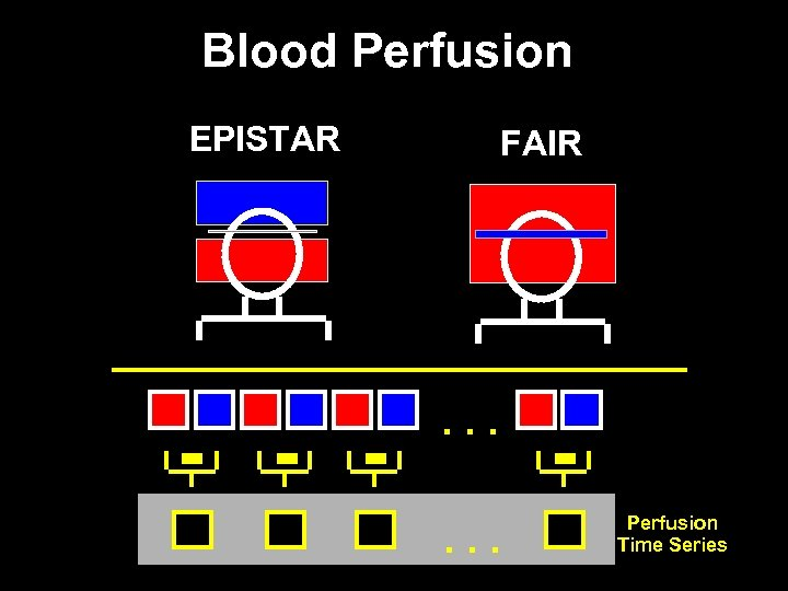 Blood Perfusion EPISTAR - - - FAIR . . . Perfusion Time Series