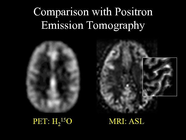 Comparison with Positron Emission Tomography PET: H 215 O MRI: ASL