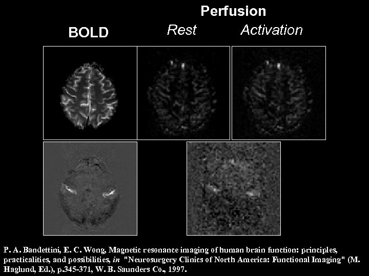BOLD Perfusion Rest Activation P. A. Bandettini, E. C. Wong, Magnetic resonance imaging of