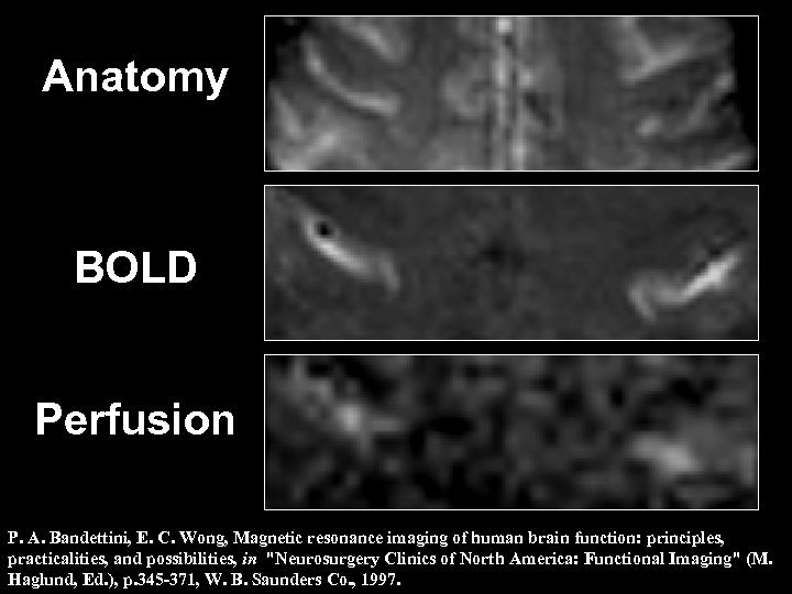 Anatomy BOLD Perfusion P. A. Bandettini, E. C. Wong, Magnetic resonance imaging of human